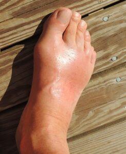 Foot Pain In Seniors